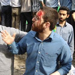 برتربین-دانشجوی دانشگاه شریف كه در حمله جمعی از راهپیمایان به این دانشگاه مجروح شد